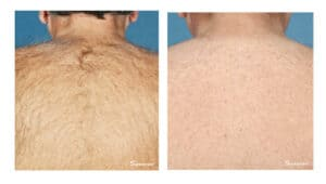 Motif Laser Hair Removal in Rancho Cucamonga