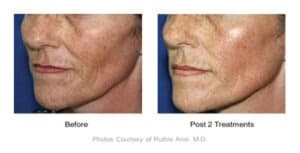 Sublime laser treatments to reduce fine lines in Rancho Cucamonga. Available at Gemini Plastic Surgery