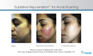 Sublative skin rejuvenation for acne scars. Rancho Cucamonga in Gemini Plastic Surgery