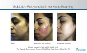 Sublative skin rejuvenation for acne scars. Rancho Cucamonga in Gemini Plastic Surgery