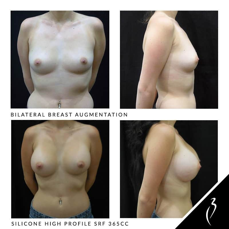 Before & After Breast Augmentation - Bilateral Breast Lift. Case Study: #5000 Patient Photos · Inland Empire