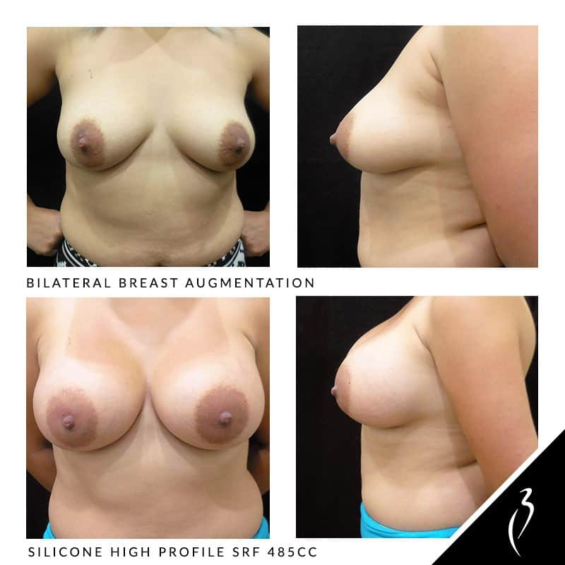 Before & After Breast Augmentation - Bilateral Breast Lift. Case Study: #5001 Patient Photos · Inland Empire