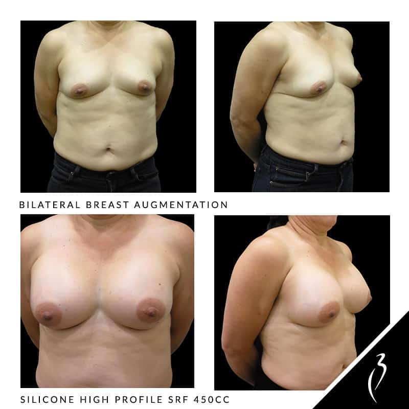 Bilateral breast augmentation before and after photo results. Breast augmentation surgery procedures in Rancho Cucamonga, Inland Empire.