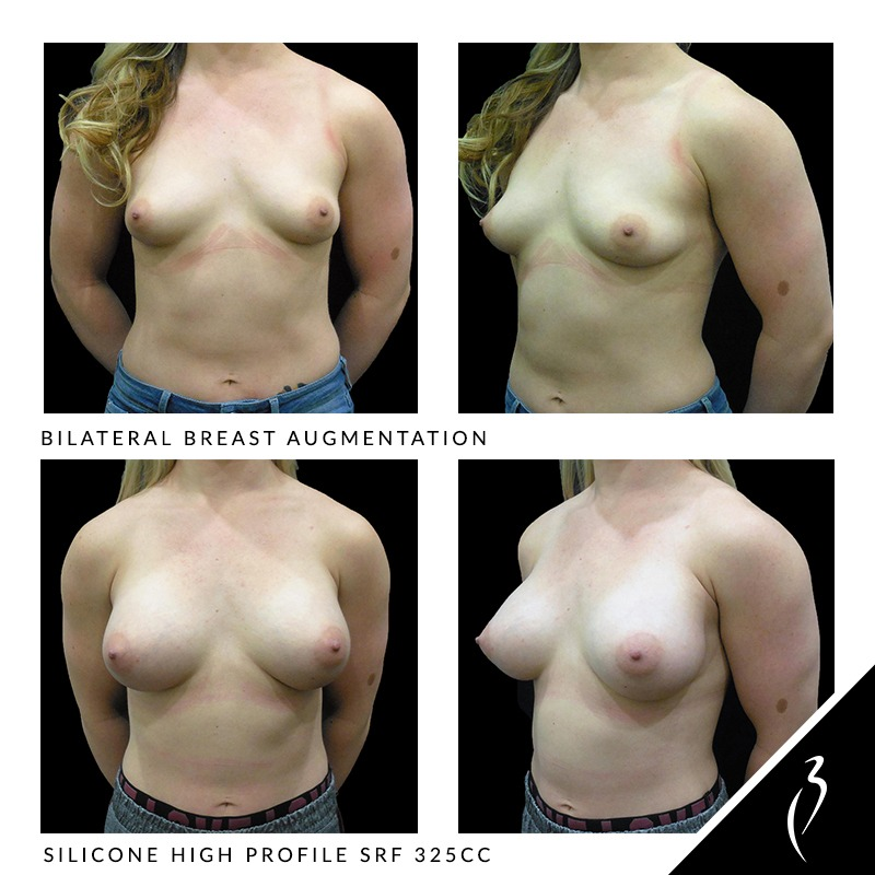 bilateral breast augmentation before and after photos from Gemini Plastic Surgery in Inland Empire.
