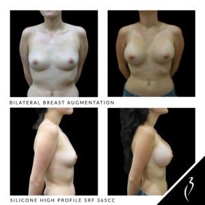 Breast Implant Results,Scars Gemini Plastic Surgery Inland Empire