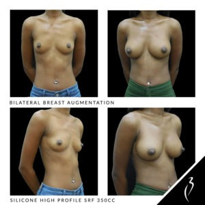 Before After Breast Implants · Chino Hills, Inland Empire