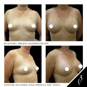 Breast Enlargement · Rancho Cucamonga, Chino Hills, Inland Empire