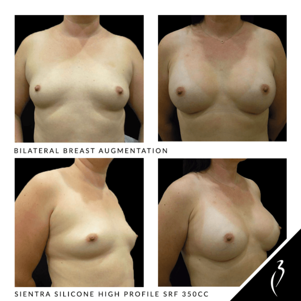 Breast Augmentation #5008 · Rancho Cucamonga, Inland Empire