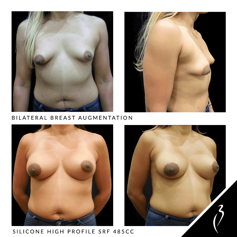 Breast Implants #5009 · Rancho Cucamonga, Upland, Inland Empire