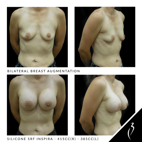 Before After Breast Implants · Rancho Cucamonga · Case Study 5014