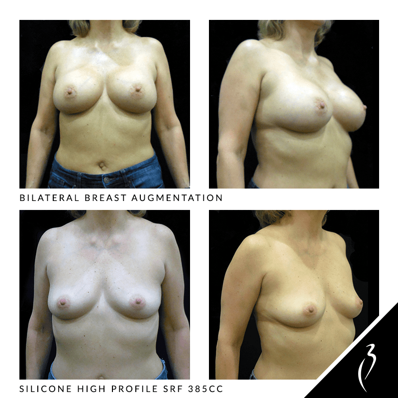 Before After Breast Implants · Rancho Cucamonga · Case Study 5015