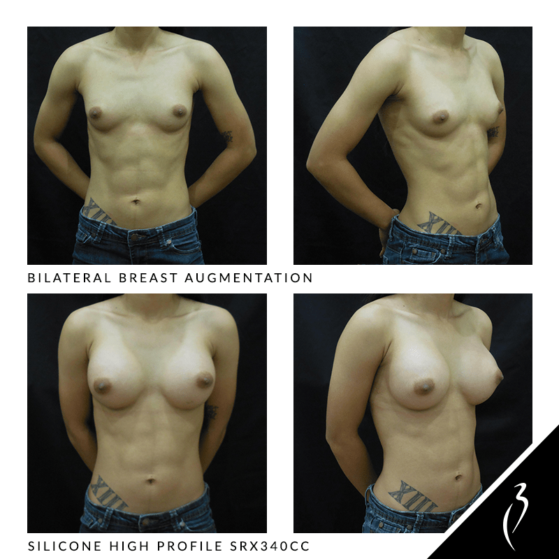 Before After Breast Implants · Rancho Cucamonga · Case Study 5018