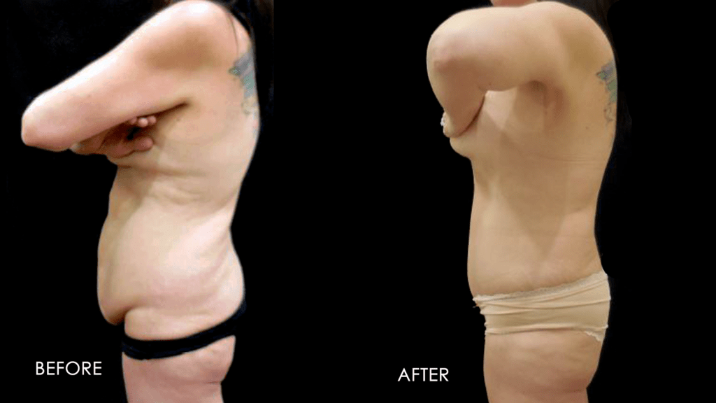 before and after results: fupa, liposuction procedure.