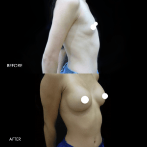Before After Remove & Replace Breast Implants #5017 · Rancho