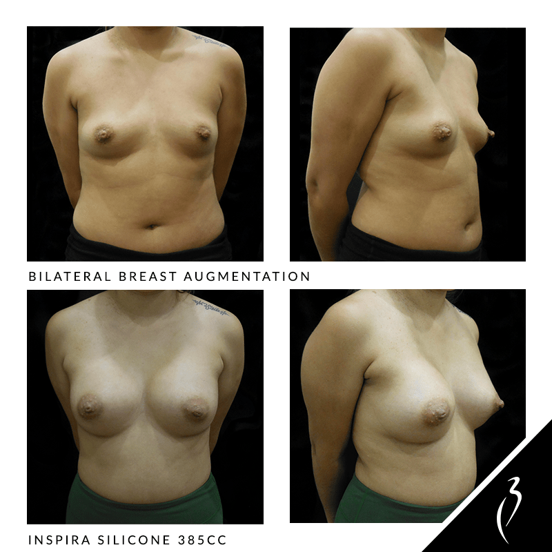 Before After Breast Implants · Rancho Cucamonga · Case Study 5020