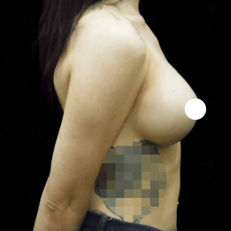 Before & After Breast Implants Case Study 5021-1