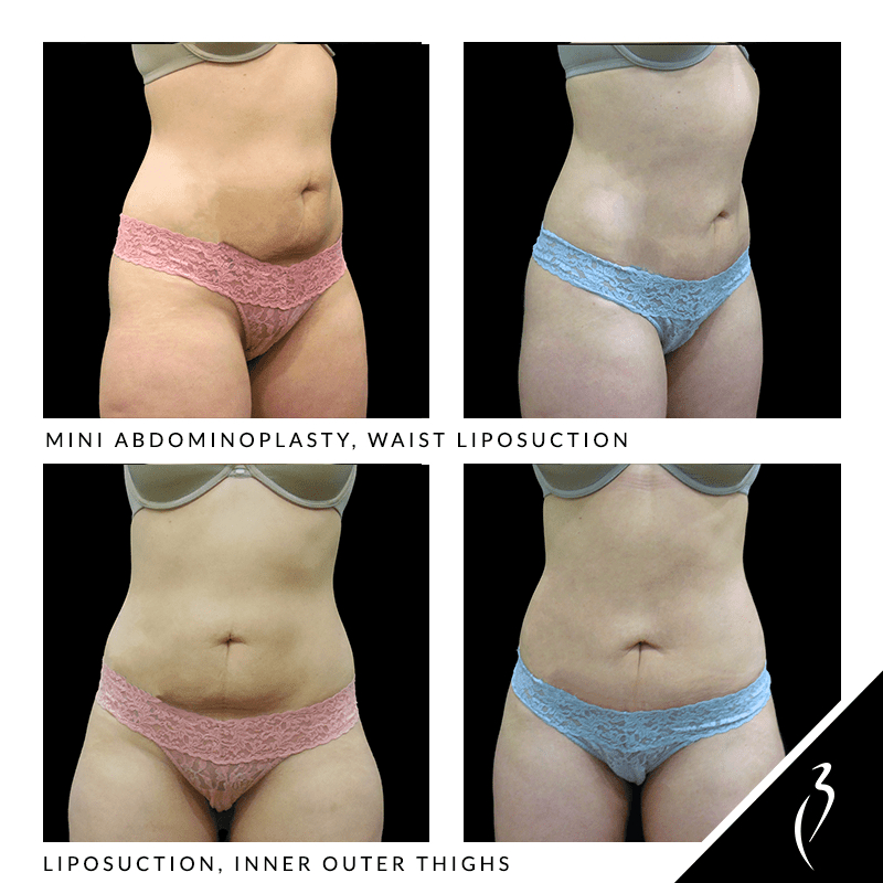 Mini Abdominoplasty, Waist Lipo. Thigh Liposuction #5034