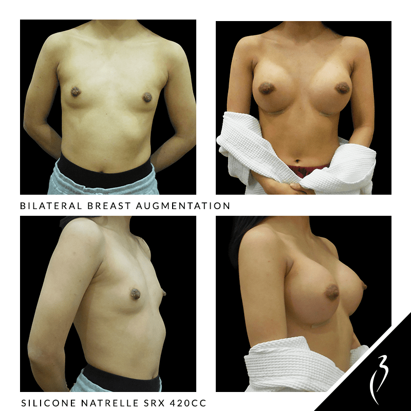 Before After Breast Implants · Rancho Cucamonga · Case Study 5044