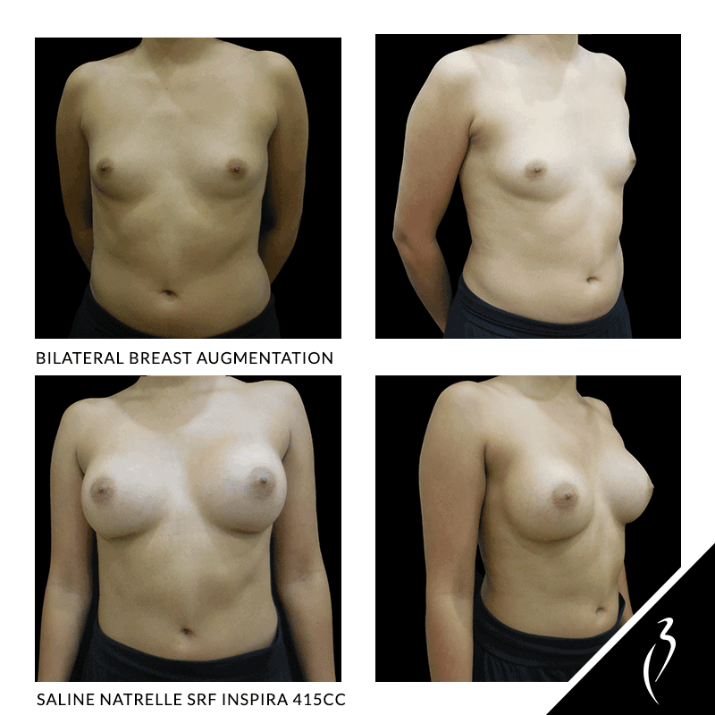 Before After Breast Implants · Rancho Cucamonga · Case Study 5048