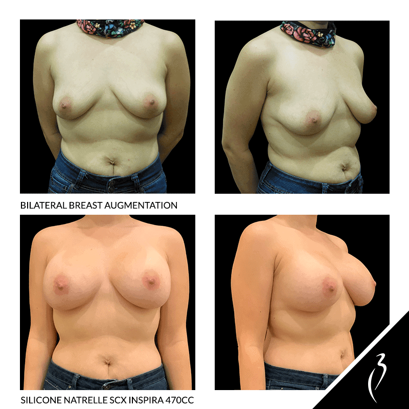 Before After Breast Augmentation · Rancho Cucamonga · Case Study 5050