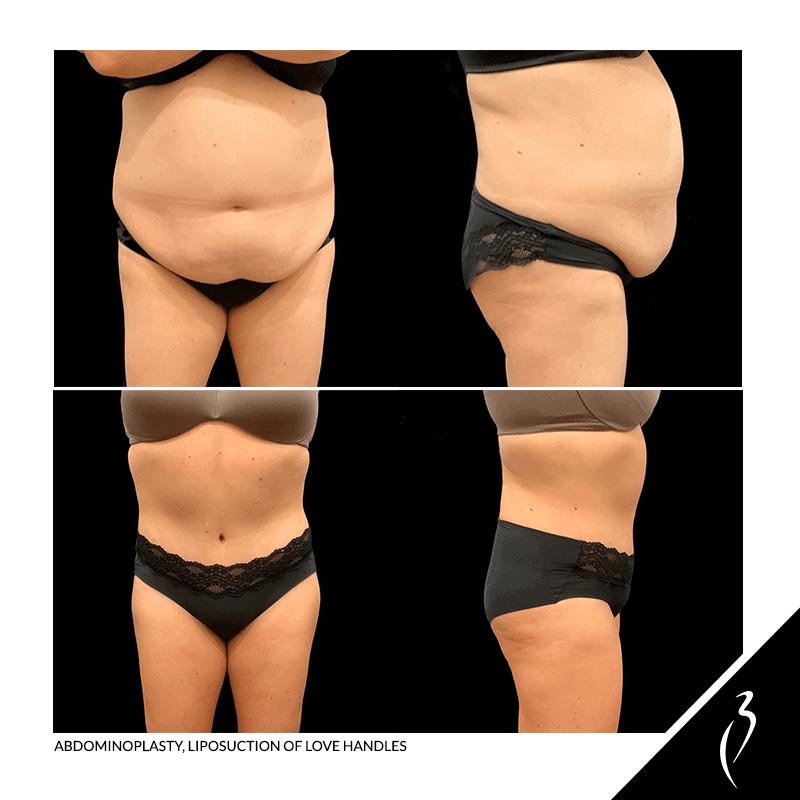 Abdominoplasty, Liposuction of Love Handles Rancho Cucamonga 5057