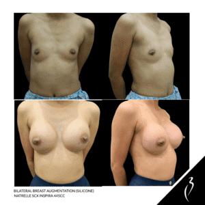 Breast Augmentation #5058 · Della Bennett MD Rancho Cucamonga, Ca