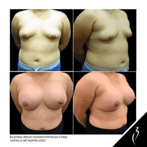 Breast Augmentation #5059 · Della Bennett MD Rancho Cucamonga, Ca