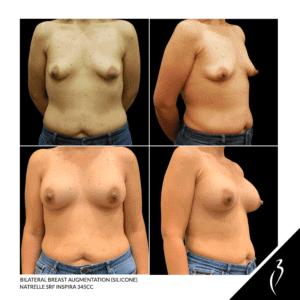Breast Augmentation #5060 · Della Bennett MD Rancho Cucamonga, Ca