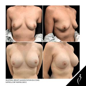 Breast Augmentation #5062 · Della Bennett MD · Rancho California