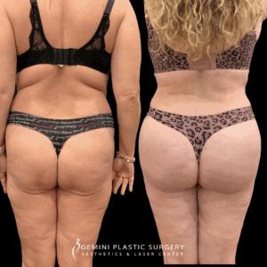Back, Waist, Thigh Liposuction in Rancho Cucamonga, California